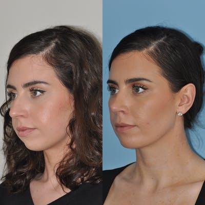 Chin Implants Gallery - Patient 58470336 - Image 1