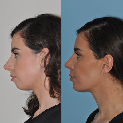 Chin Implants Gallery - Patient 58470336 - Image 2
