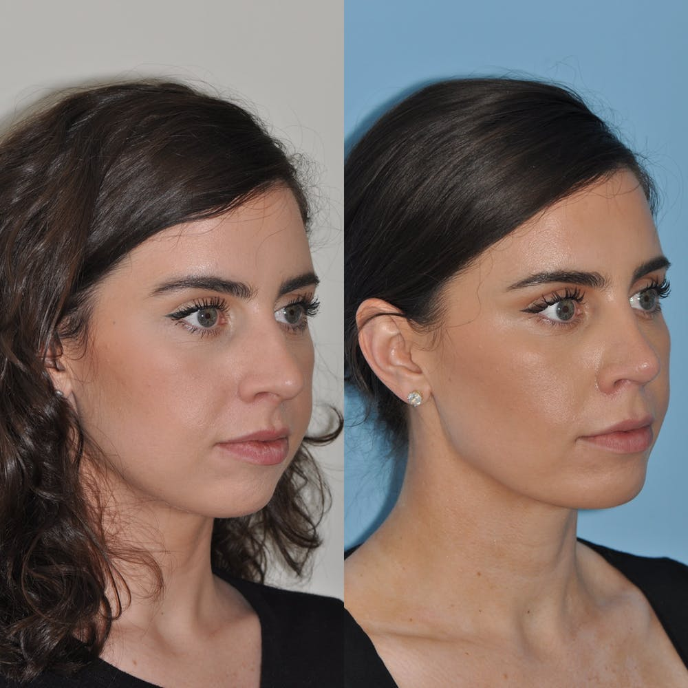 Chin Implants Gallery - Patient 58470336 - Image 3