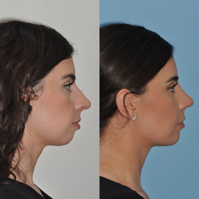 Chin Implants Gallery - Patient 58470336 - Image 4