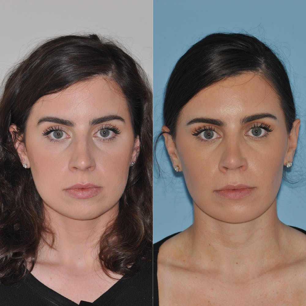 Chin Implants Gallery - Patient 58470336 - Image 5