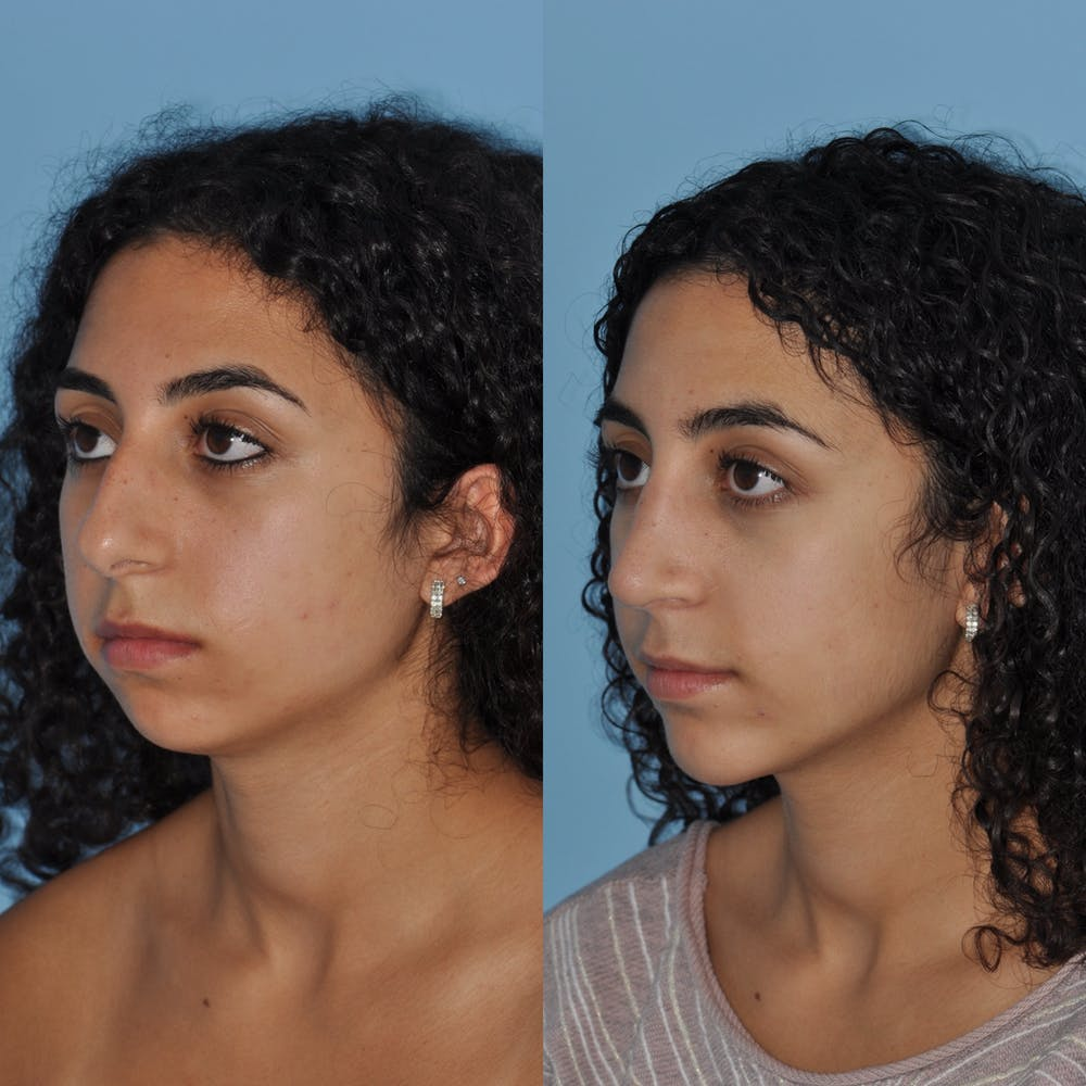 Chin Implants Gallery - Patient 58470337 - Image 1
