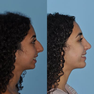 Chin Implants Gallery - Patient 58470337 - Image 2