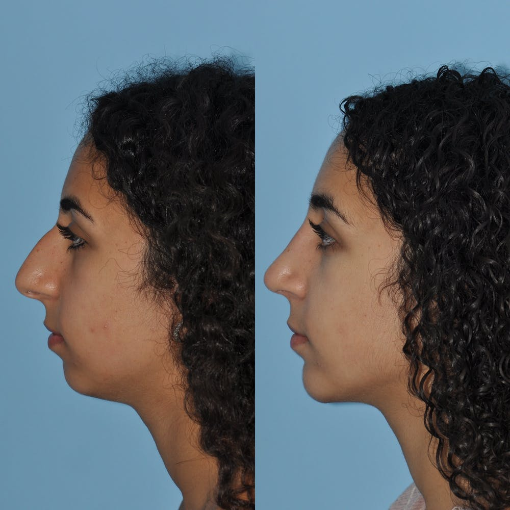 Chin Implants Gallery - Patient 58470337 - Image 3