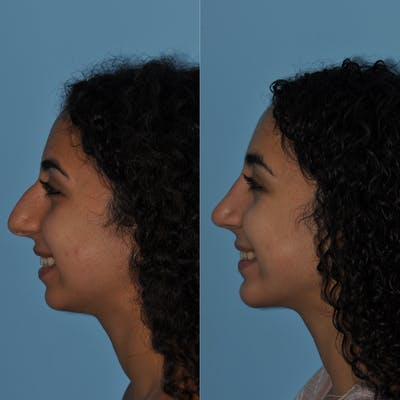 Chin Implants Gallery - Patient 58470337 - Image 4