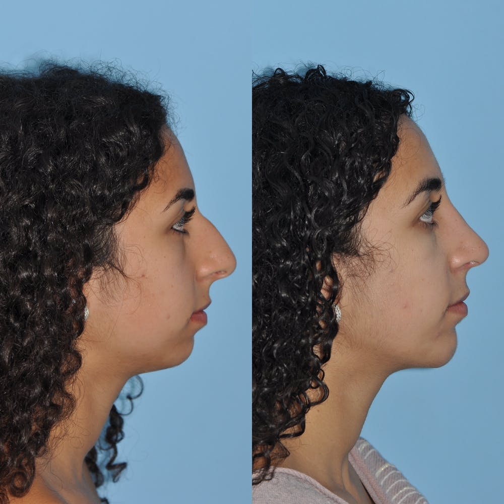 Chin Implants Gallery - Patient 58470337 - Image 5