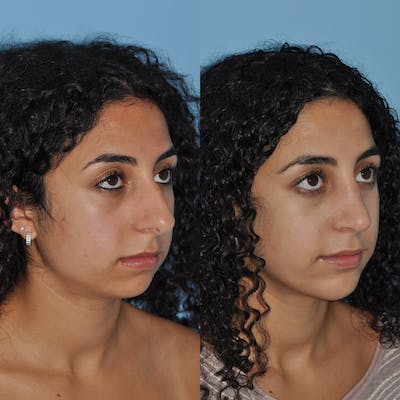 Chin Implants Gallery - Patient 58470337 - Image 6
