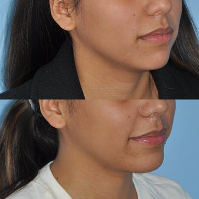 Chin Implants Gallery - Patient 58470338 - Image 1