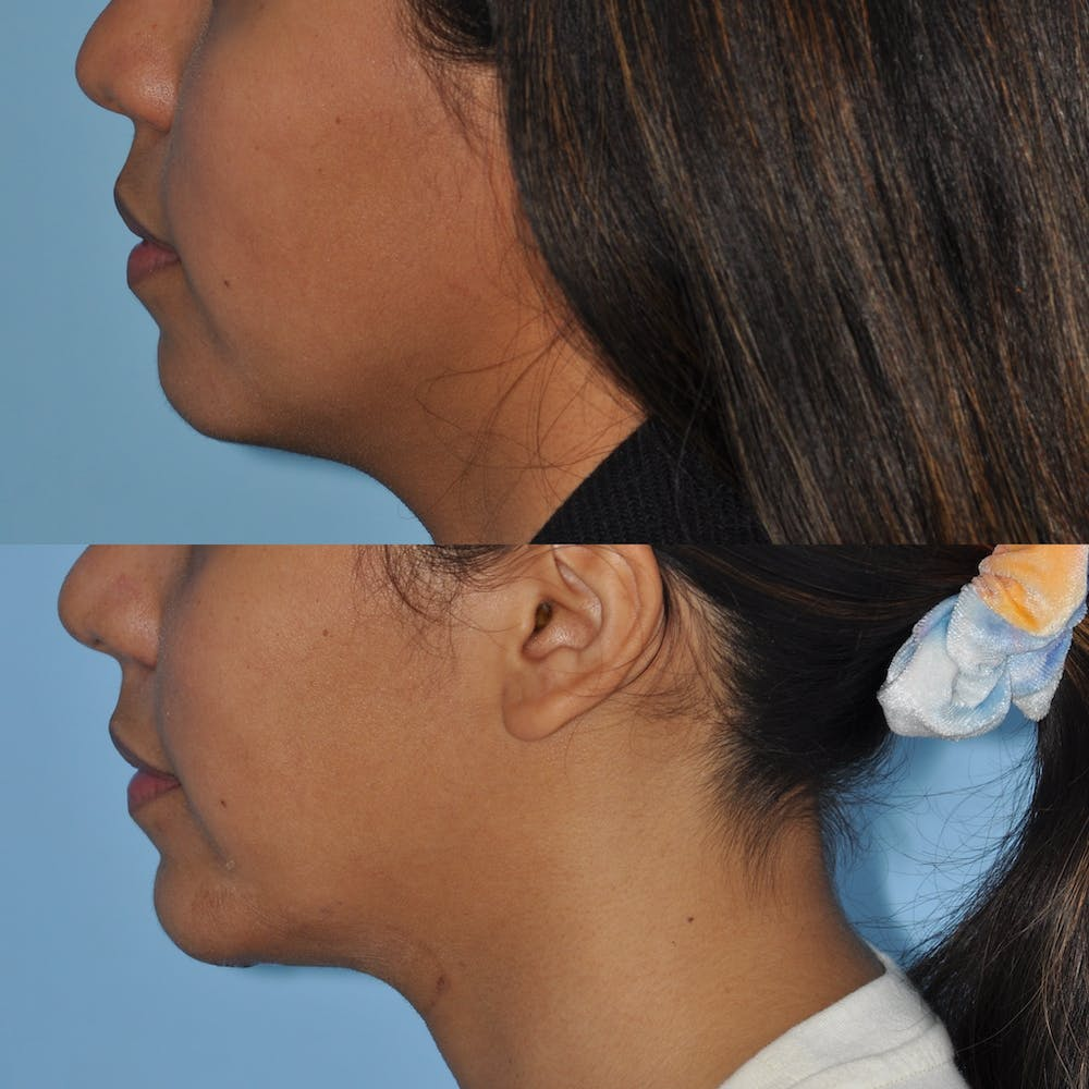 Chin Implants Gallery - Patient 58470338 - Image 2