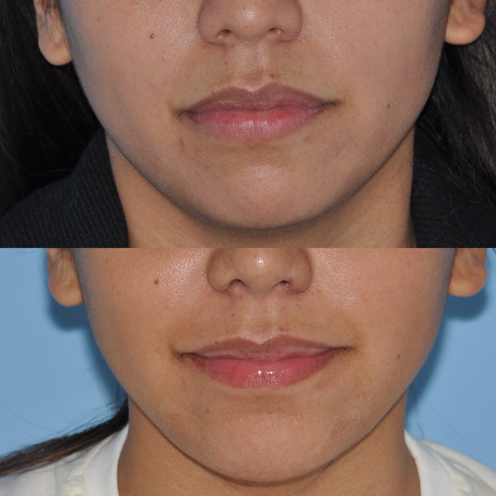 Chin Implants Gallery - Patient 58470338 - Image 3