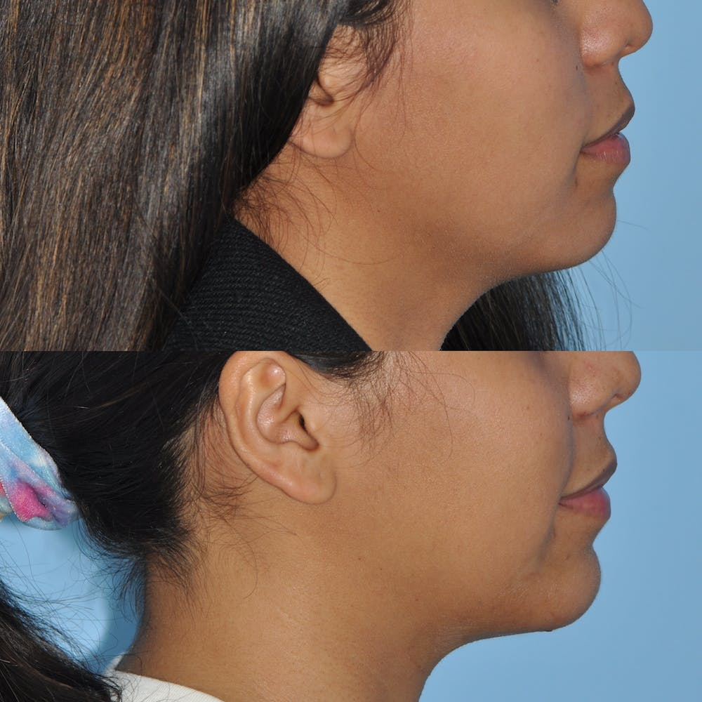 Chin Implants Gallery - Patient 58470338 - Image 4