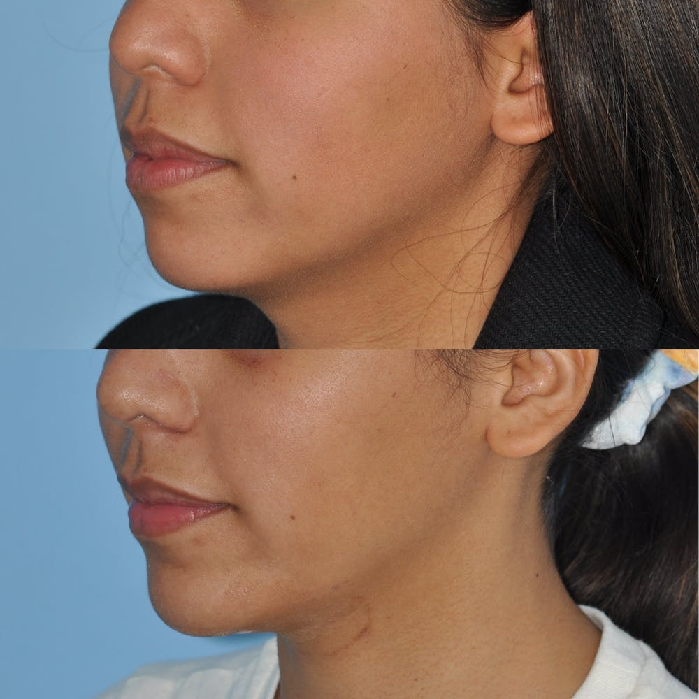 Chin Implants Gallery - Patient 58470338 - Image 5