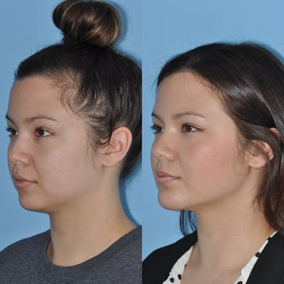 Chin Implants Gallery - Patient 58470339 - Image 1
