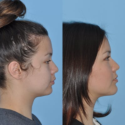 Chin Implants Gallery - Patient 58470339 - Image 4