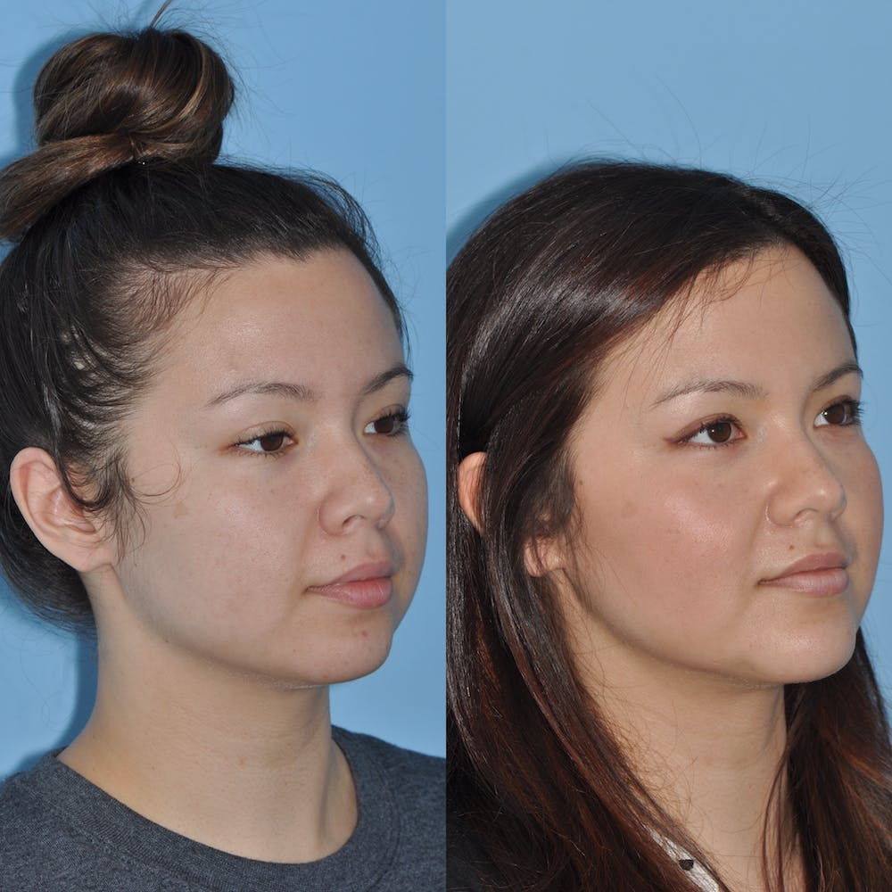 Chin Implants Gallery - Patient 58470339 - Image 5