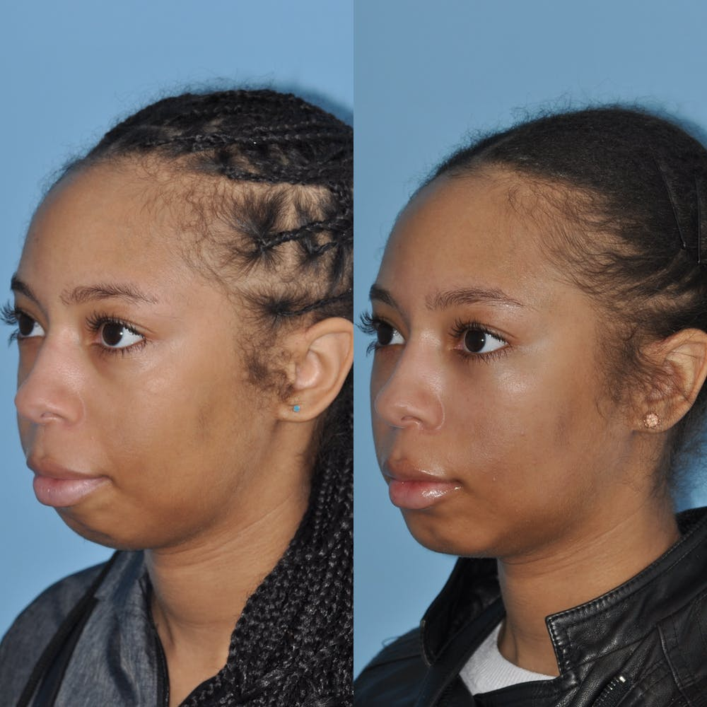 Chin Implants Gallery - Patient 58470340 - Image 1