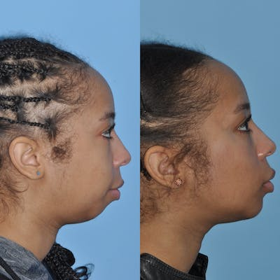 Chin Implants Gallery - Patient 58470340 - Image 2
