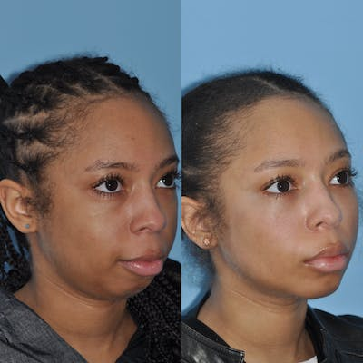 Chin Implants Gallery - Patient 58470340 - Image 4