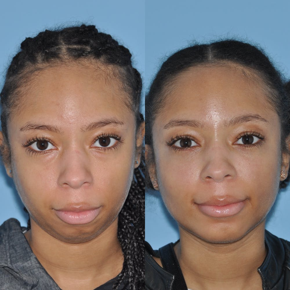 Chin Implants Gallery - Patient 58470340 - Image 5