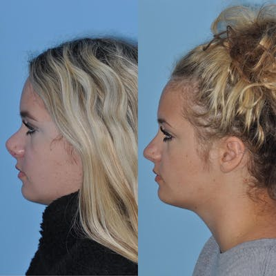 Revision Rhinoplasty Gallery - Patient 58470356 - Image 2