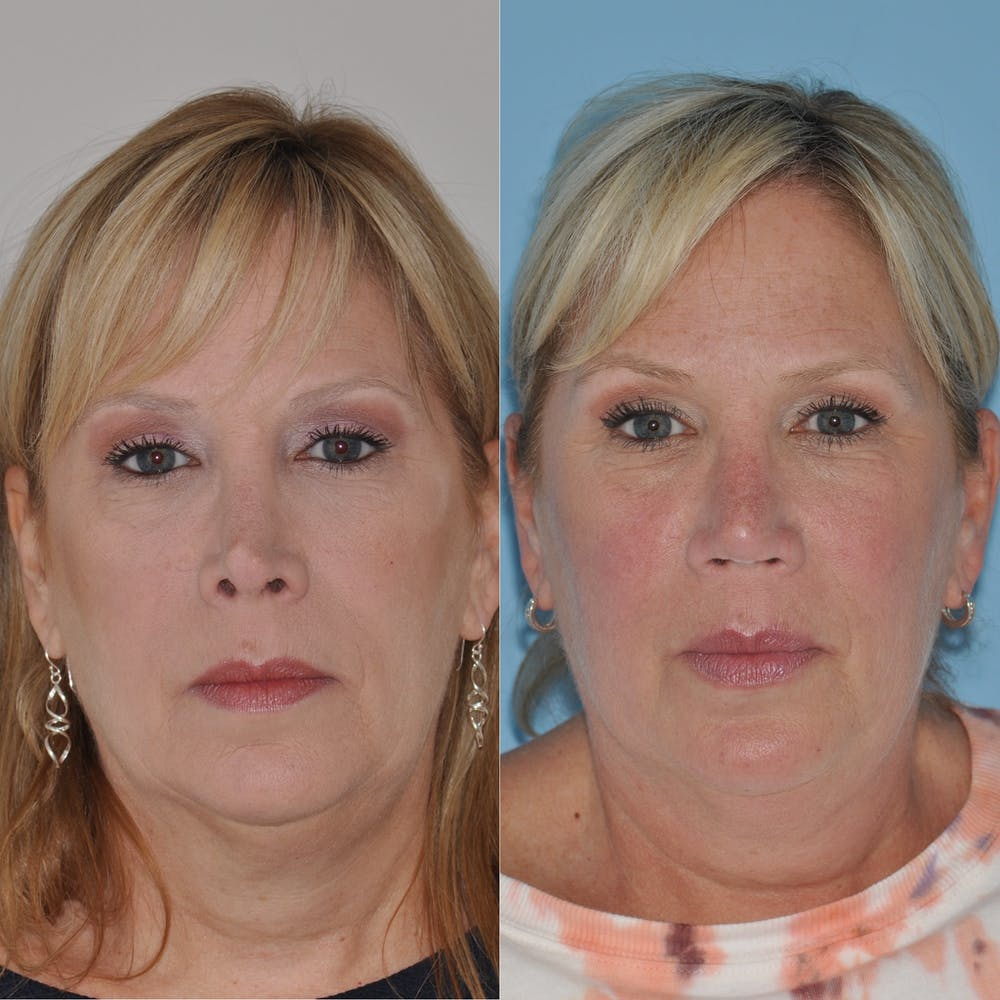 Revision Rhinoplasty Gallery - Patient 58470357 - Image 1