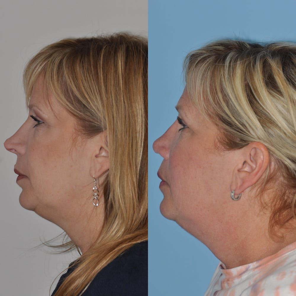 Revision Rhinoplasty Gallery - Patient 58470357 - Image 2