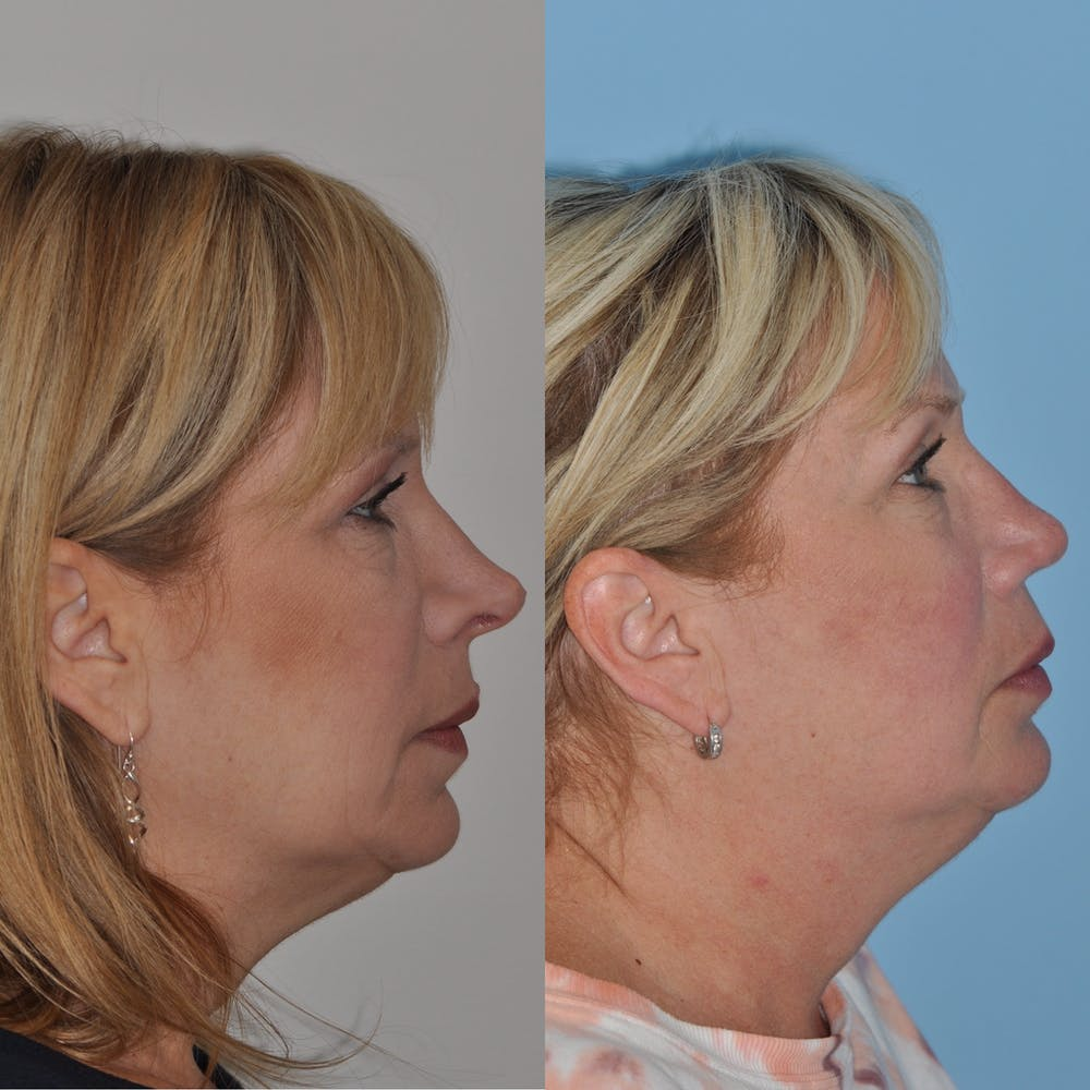 Revision Rhinoplasty Gallery - Patient 58470357 - Image 3