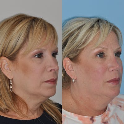 Revision Rhinoplasty Gallery - Patient 58470357 - Image 4