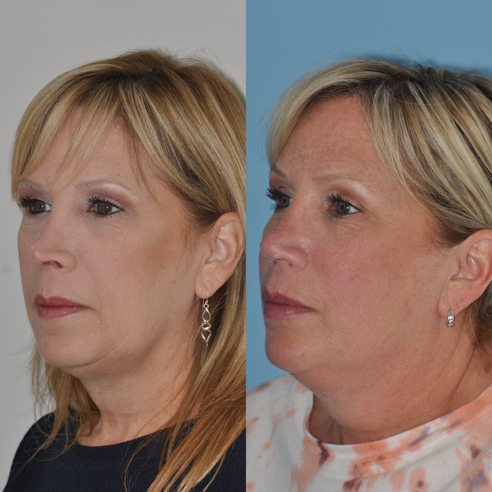 Revision Rhinoplasty Gallery - Patient 58470357 - Image 6