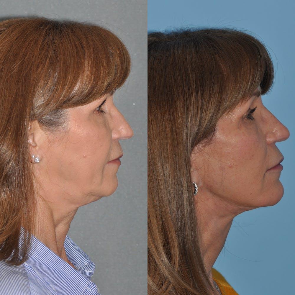 Facelift Gallery - Patient 59047930 - Image 2
