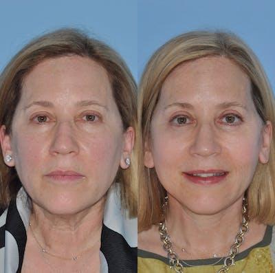 Facelift Gallery - Patient 59047933 - Image 1