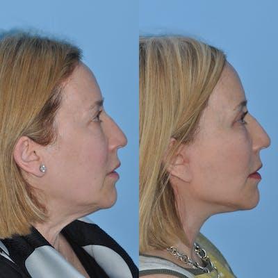 Facelift Gallery - Patient 59047933 - Image 2