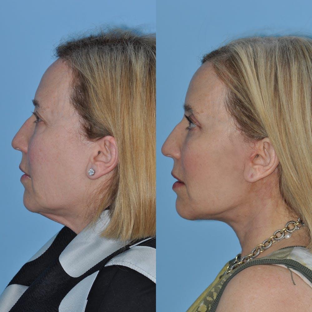 Facelift Gallery - Patient 59047933 - Image 3