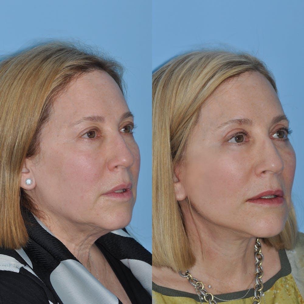 Facelift Gallery - Patient 59047933 - Image 4