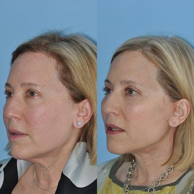 Facelift Gallery - Patient 59047933 - Image 6
