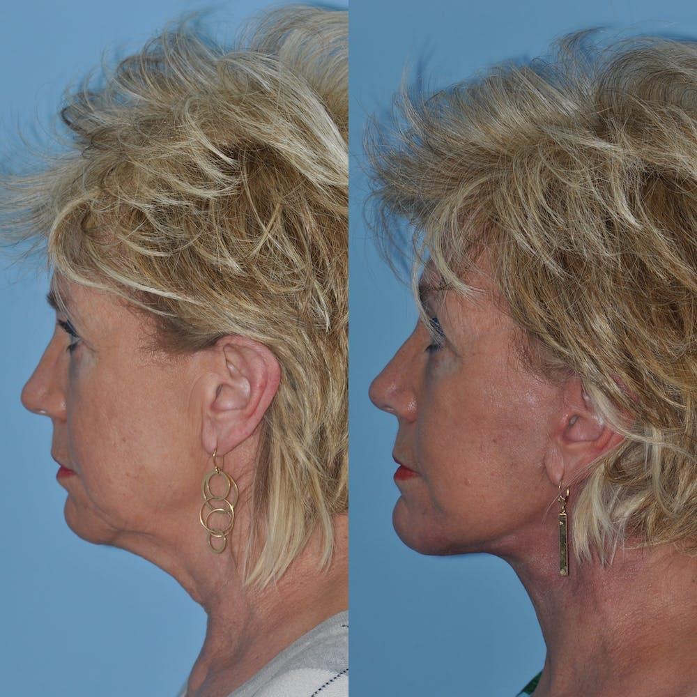 Facelift Gallery - Patient 59047937 - Image 1