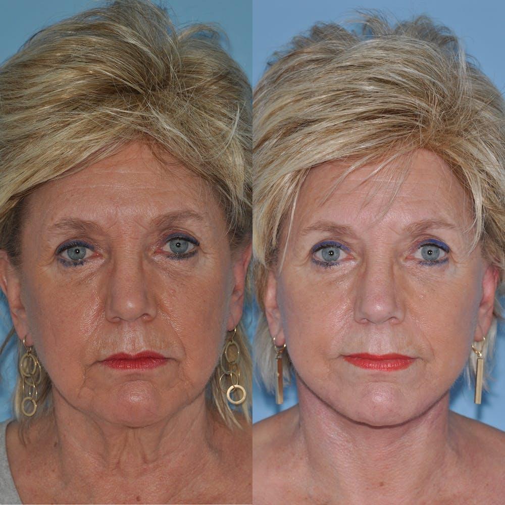 Facelift Gallery - Patient 59047937 - Image 2