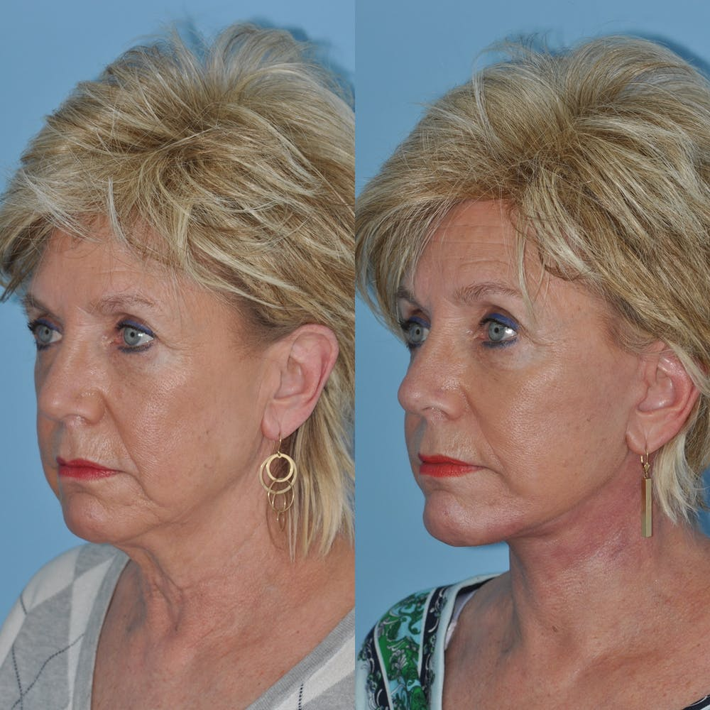 Facelift Gallery - Patient 59047937 - Image 3