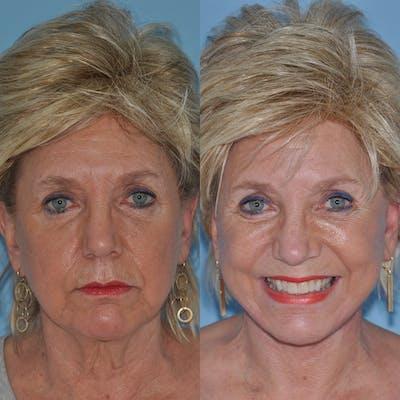 Facelift Gallery - Patient 59047937 - Image 4