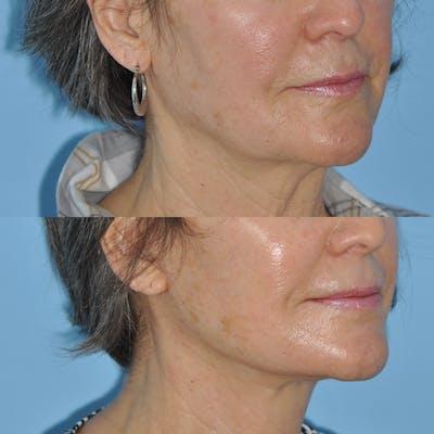 Facelift Gallery - Patient 59047938 - Image 1