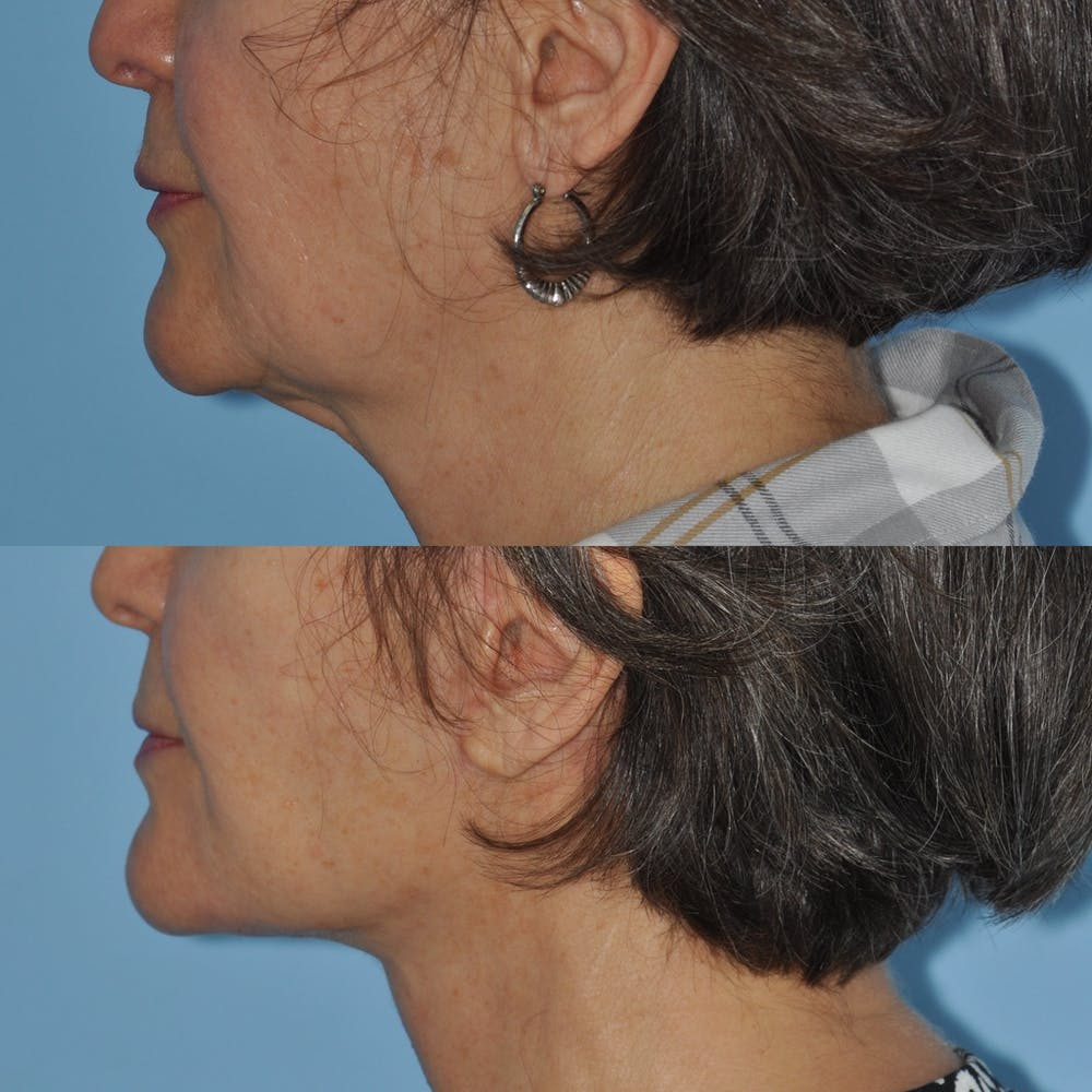 Facelift Gallery - Patient 59047938 - Image 2