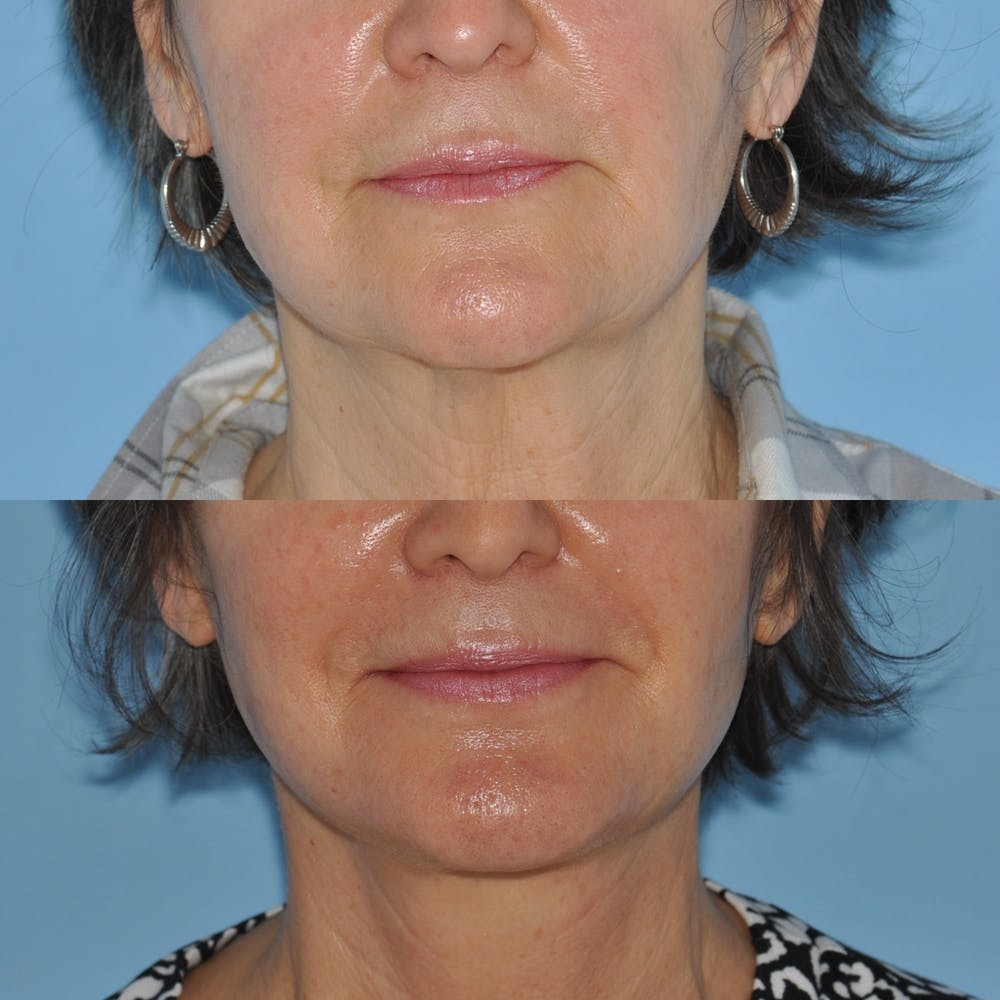 Facelift Gallery - Patient 59047938 - Image 3