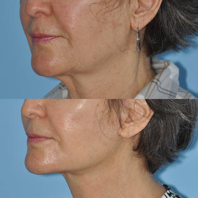 Facelift Gallery - Patient 59047938 - Image 4