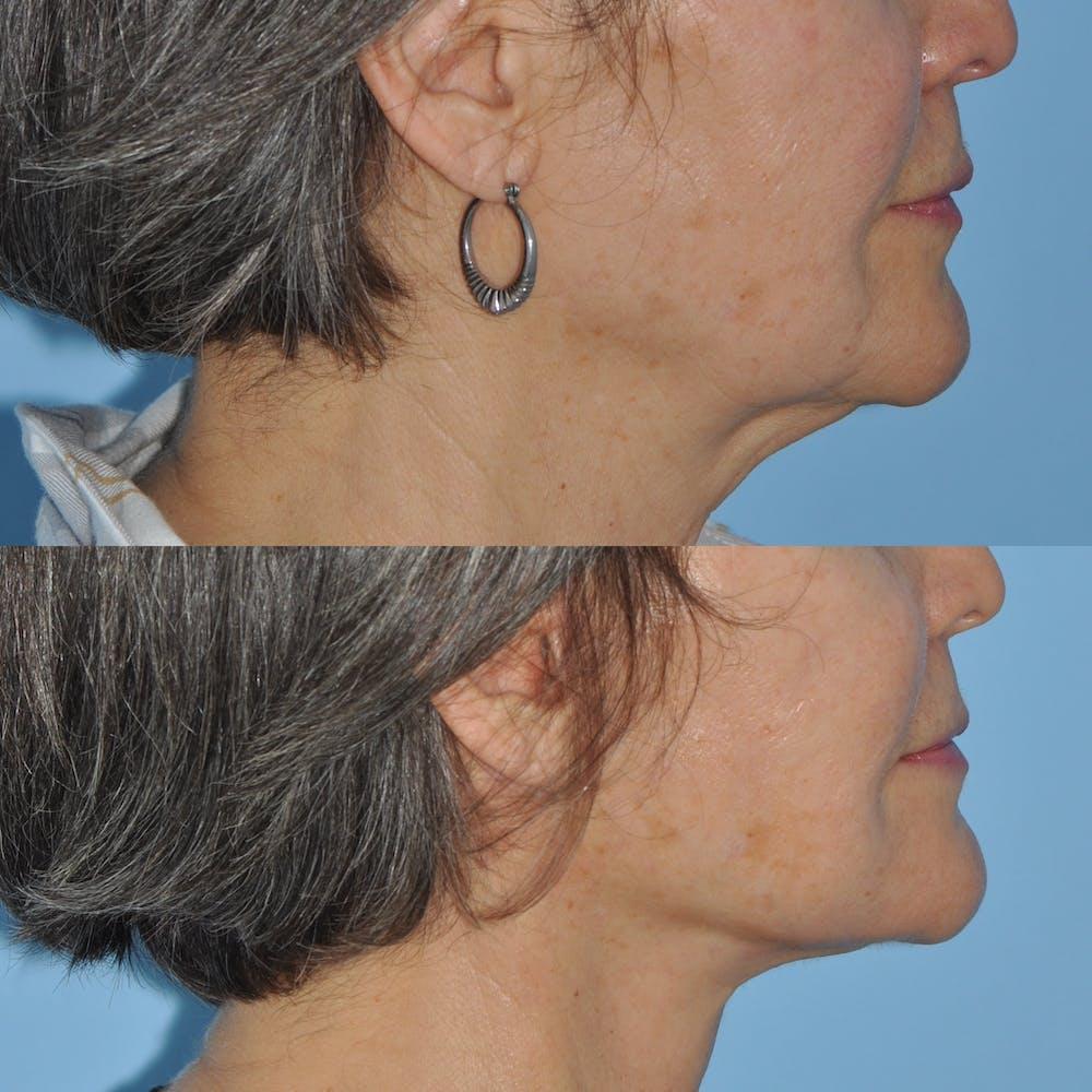 Facelift Gallery - Patient 59047938 - Image 5