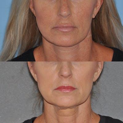 Facelift Gallery - Patient 59047940 - Image 1