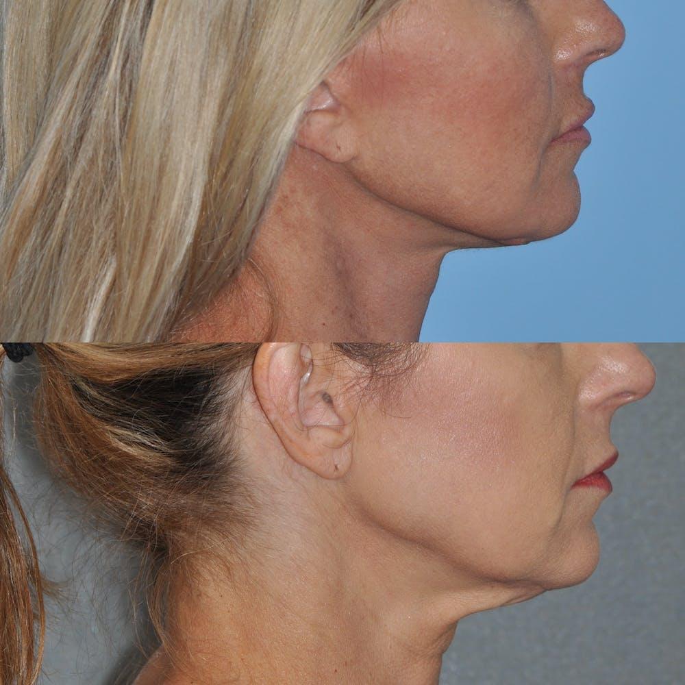 Facelift Gallery - Patient 59047940 - Image 2