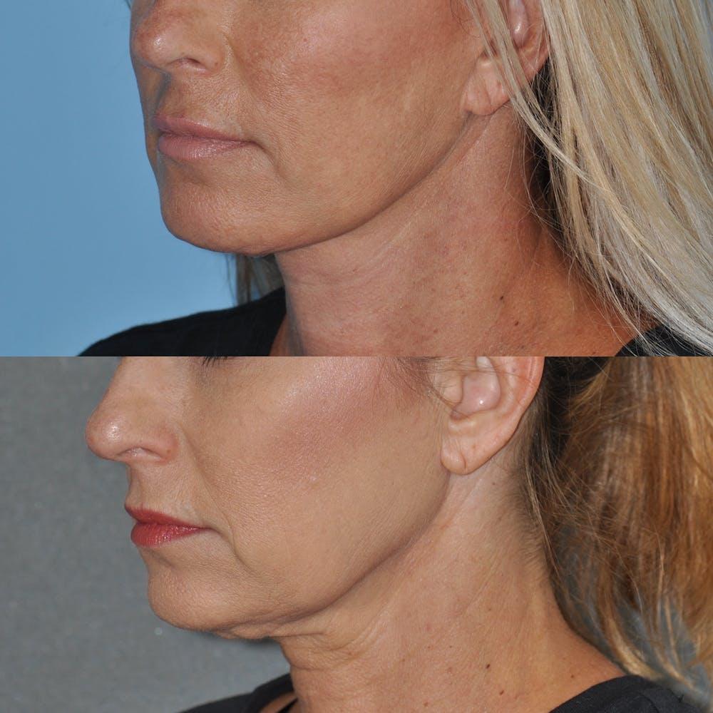 Facelift Gallery - Patient 59047940 - Image 3