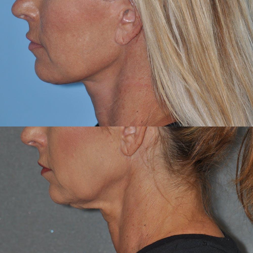 Facelift Gallery - Patient 59047940 - Image 4