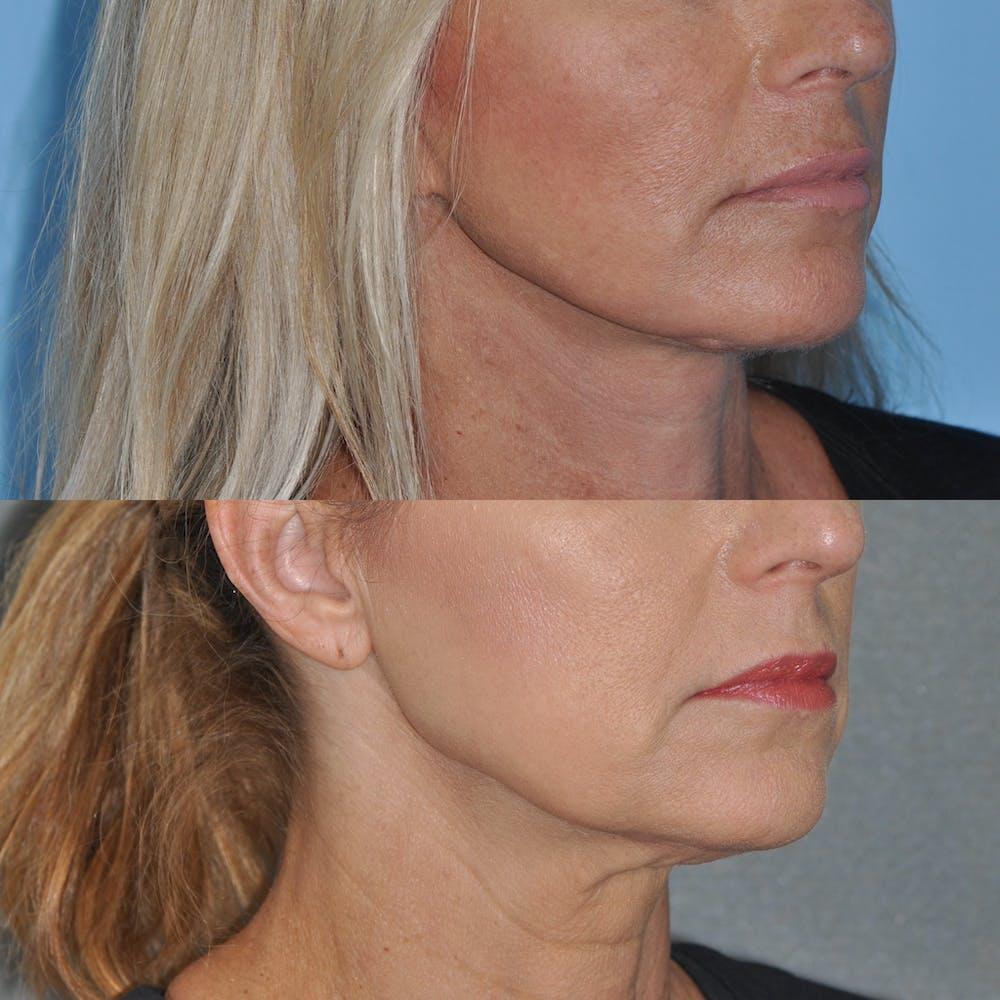 Facelift Gallery - Patient 59047940 - Image 5