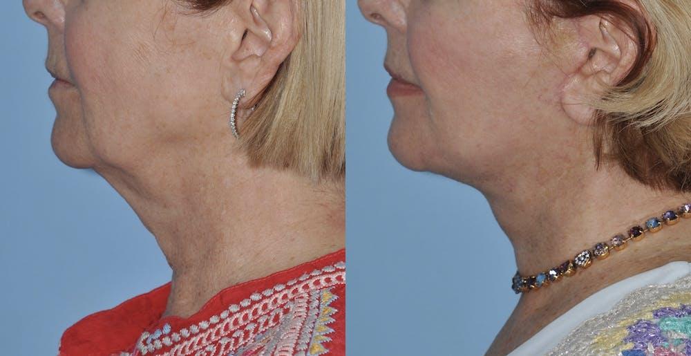 Facelift Gallery - Patient 59047942 - Image 1